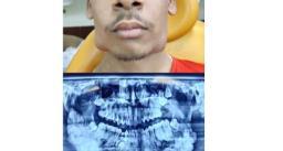 17 साल के लड़के नीतीश कुमार के मुंह में 82 दांत, 3 घंटे सर्जरी कर निकाले