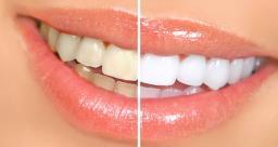 इन फलों के सेवन से दूर होगा दांतों का पीलापन