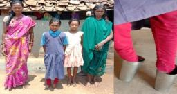 साहसी गीता – 11 साल की गीता के पैर में पंजे नहीं, पानी पीने वाला गिलास लगाकर चलती है